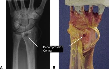 Core Decompression of the Distal Radius for the Treatment